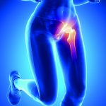 Friendswood Hip Pain