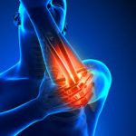 Friendswood Tennis Elbow and Golfers Elbow