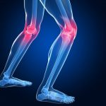 Friendswood Knee Pain