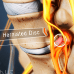 Friendswood Herniated Disc