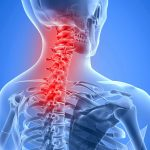 Friendswood Neck Pain